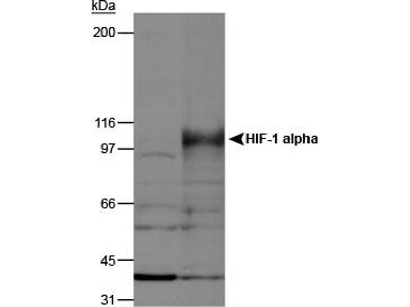 Western Blotting (WB) image for anti-HIF1A / HIF1 alpha Sampler (AA 329-530), (AA 432-528) antibody (ABIN152187)