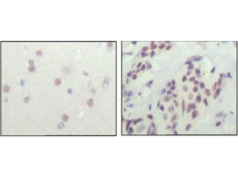 Immunohistochemistry (IHC) image for anti-Nuclear Receptor Co-Repressor 1 (NCOR1) antibody (ABIN1108391)