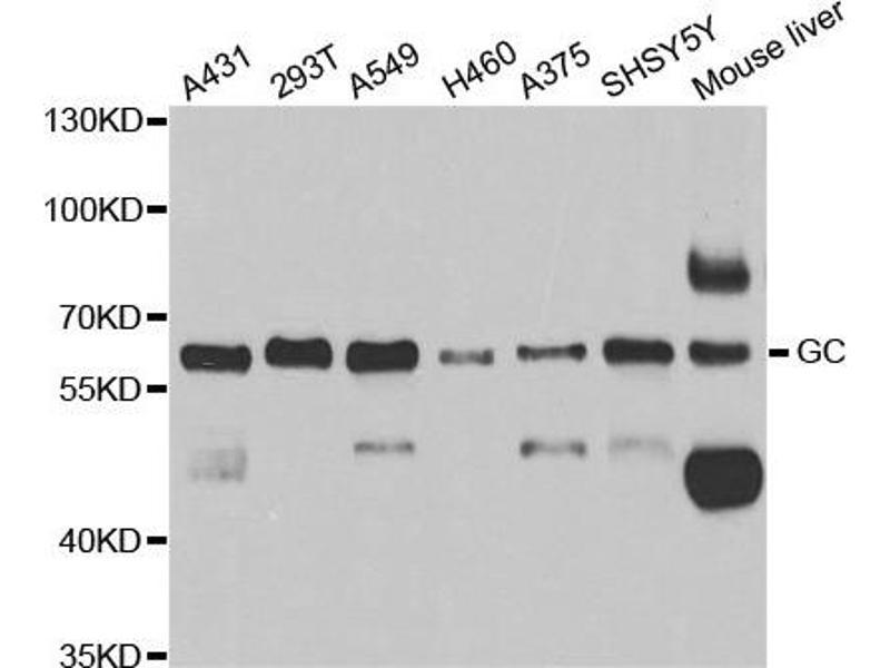 Image no. 2 for anti-Gc antibody (ABIN2562783)