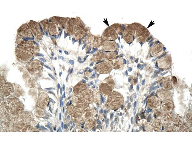 Immunohistochemistry (IHC) image for anti-Nuclear Receptor Co-Repressor 1 (NCOR1) (N-Term) antibody (ABIN2779671)