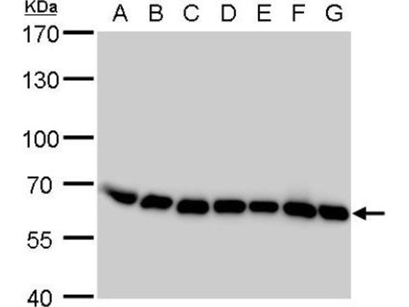 Western Blotting (WB) image for anti-Archain 1 (ARCN1) (Center) antibody (ABIN4264301)