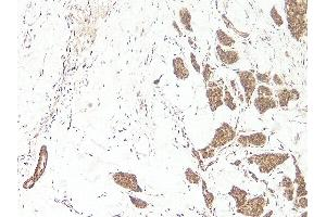 Image no. 1 for anti-Wingless-Type MMTV Integration Site Family, Member 3A (WNT3A) (N-Term) antibody (Biotin) (ABIN2477145)