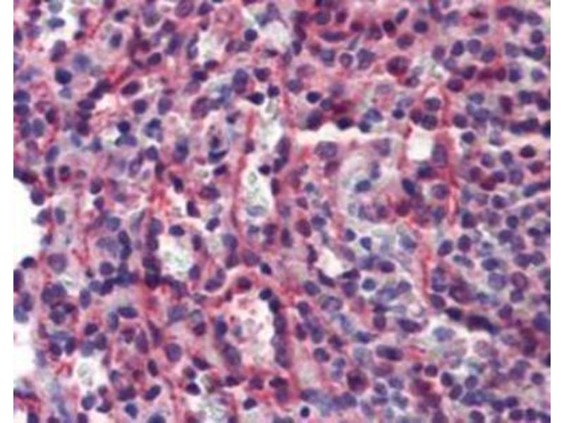 Immunohistochemistry (IHC) image for anti-Caspase 7 antibody (Caspase 7, Apoptosis-Related Cysteine Peptidase) (ABIN446622)