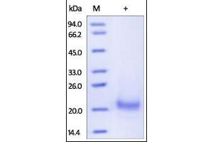 Image no. 1 for Tumor Necrosis Factor Receptor Superfamily, Member 10a (TNFRSF10A) (AA 24-239) protein (His tag) (ABIN2181862)