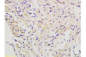 Immunohistochemistry (Paraffin-embedded Sections) (IHC (p)) image for anti-CFLAR antibody (CASP8 and FADD-Like Apoptosis Regulator) (AA 462-480) (ABIN737946)