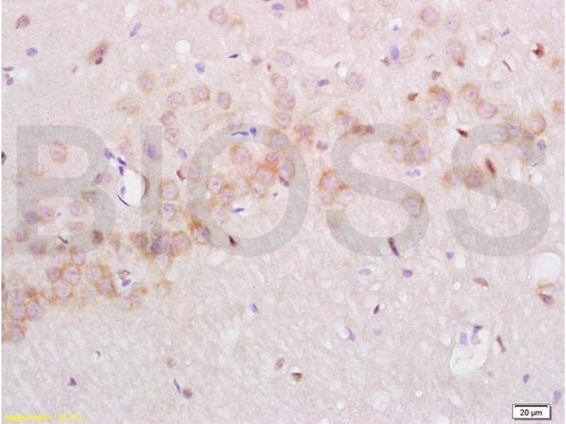 Immunohistochemistry (IHC) image for anti-Nerve Growth Factor Receptor (NGFR) (AA 287-337) antibody (ABIN725660)