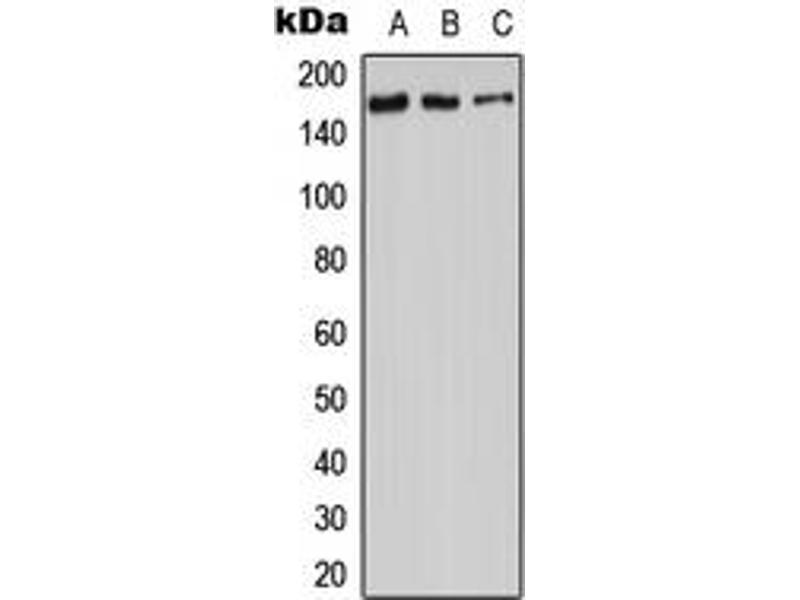Western Blotting (WB) image for anti-Adenylate Cyclase 9 (ADCY9) (N-Term) antibody (ABIN2707307)