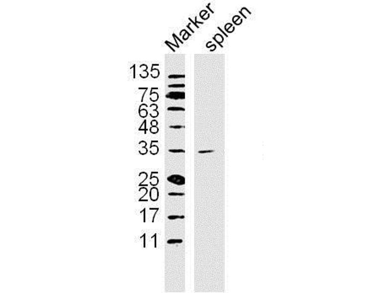 Western Blotting (WB) image for anti-NFKBIA antibody (Nuclear Factor of kappa Light Polypeptide Gene Enhancer in B-Cells Inhibitor, alpha) (AA 5-34) (ABIN674454)