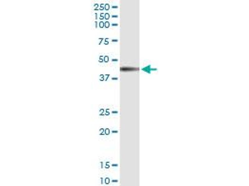 Immunoprecipitation (IP) image for anti-Interleukin 12 Receptor beta 1 (IL12RB1) (AA 1-381), (full length) antibody (ABIN517100)
