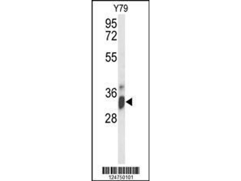 Western Blotting (WB) image for anti-IMP4, U3 Small Nucleolar Ribonucleoprotein, Homolog (Yeast) (IMP4) (AA 215-243), (C-Term) antibody (ABIN653307)