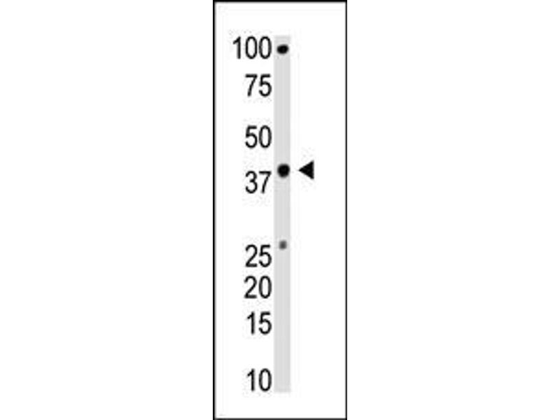 Western Blotting (WB) image for anti-BMI (AA 257-286), (C-Term) antibody (ABIN389084)