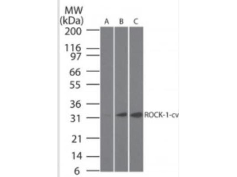 Western Blotting (WB) image for anti-rho-Associated, Coiled-Coil Containing Protein Kinase 1 (ROCK1) (C-Term), (cleaved) antibody (ABIN252549)