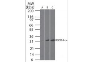 Western Blotting (WB) image for anti-ROCK1 antibody (rho-Associated, Coiled-Coil Containing Protein Kinase 1) (C-Term) (ABIN252549)