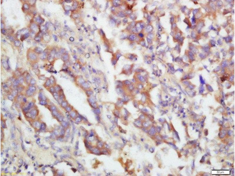 Immunohistochemistry (Paraffin-embedded Sections) (IHC (p)) image for anti-Mitogen-Activated Protein Kinase Kinase 3 (MAP2K3) (pSer207) antibody (ABIN2177687)
