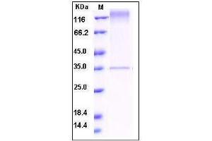Image no. 1 for C-Mer Proto-Oncogene Tyrosine Kinase (MERTK) (AA 1-499), (Extracellular Domain) protein (ABIN2215899)
