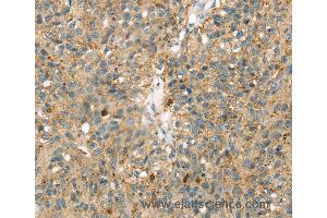 Immunohistochemistry (IHC) image for anti-Mitogen-Activated Protein Kinase 12 (MAPK12) antibody (ABIN2424139)