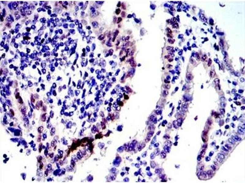 Immunohistochemistry (IHC) image for anti-Jun Proto-Oncogene (JUN) antibody (ABIN1105389)