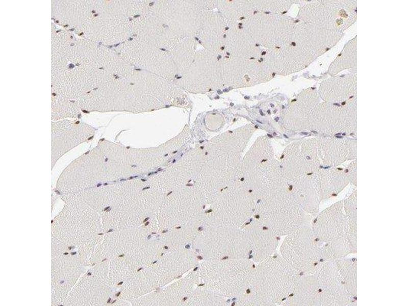 Immunohistochemistry (Paraffin-embedded Sections) (IHC (p)) image for anti-SIX Homeobox 1 (SIX1) antibody (ABIN4353939)