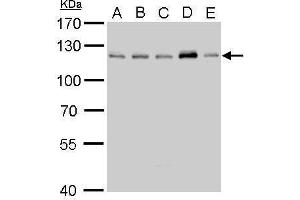 Image no. 1 for anti-Cylindromatosis (Turban Tumor Syndrome) (CYLD) (C-Term) antibody (ABIN2854660)