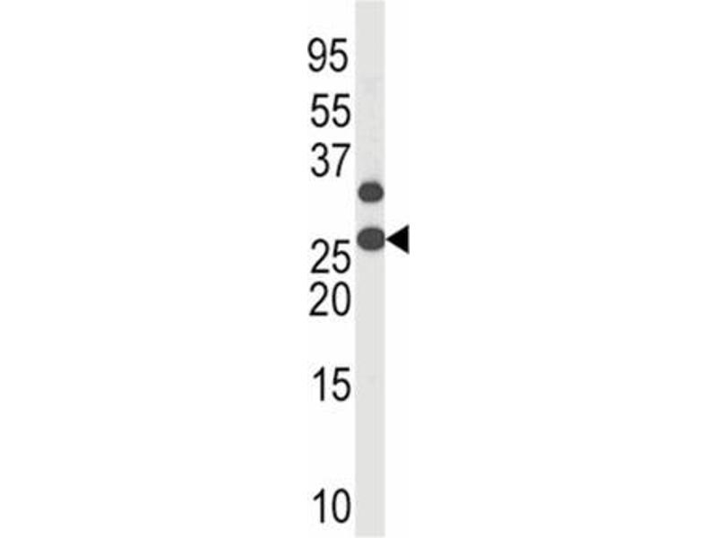 Western Blotting (WB) image for anti-Cyclin-Dependent Kinase Inhibitor 1B (p27, Kip1) (CDKN1B) (pThr187) antibody (ABIN784207)