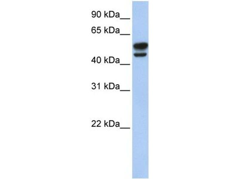 Western Blotting (WB) image for anti-Vimentin antibody (VIM) (N-Term) (ABIN2773915)