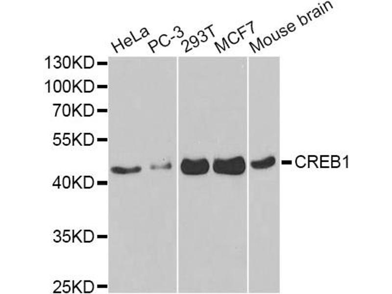 Western Blotting (WB) image for anti-cAMP Responsive Element Binding Protein 1 (CREB1) antibody (ABIN2989433)