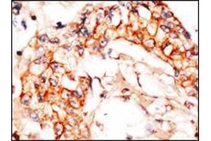 Image no. 3 for anti-NEDD8 Activating Enzyme E1 Subunit 1 (NAE1) (AA 430-459), (C-Term) antibody (ABIN5535814)
