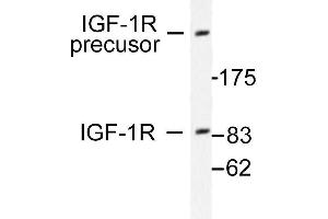 image for anti-IGF1R antibody (Insulin-Like Growth Factor 1 Receptor) (ABIN265476)