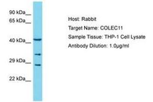 Image no. 1 for anti-Collectin Sub-Family Member 11 (COLEC11) (AA 20-69) antibody (ABIN6750556)