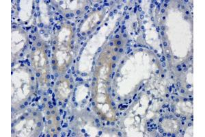 Immunohistochemistry (Paraffin-embedded Sections) (IHC (p)) image for anti-Receptor Tyrosine Kinase-Like Orphan Receptor 2 (ROR2) antibody (ABIN2506619)