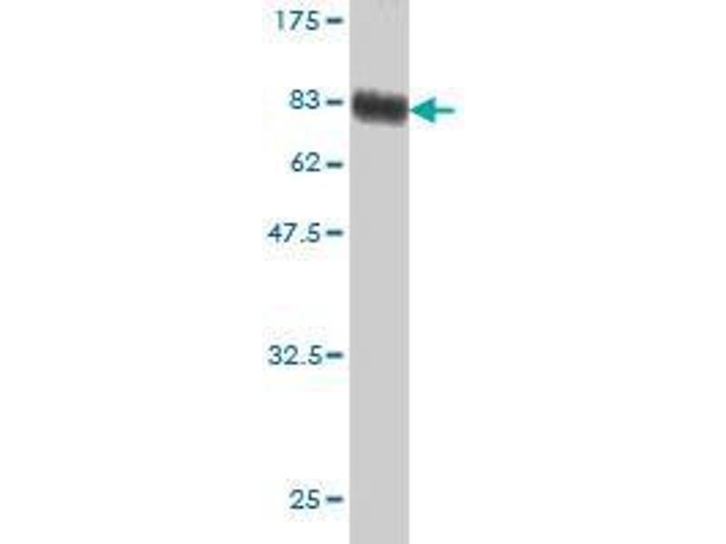 Western Blotting (WB) image for anti-Serpin Peptidase Inhibitor, Clade G (C1 Inhibitor), Member 1 (SERPING1) (AA 1-501) antibody (ABIN396026)