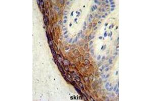 Image no. 3 for anti-Endothelin-Converting Enzyme 1 (ECE1) antibody (ABIN3002833)