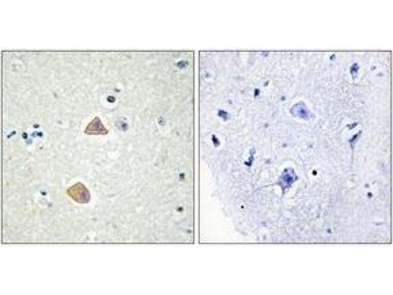 Immunohistochemistry (IHC) image for anti-Ephrin A5 (EFNA5) (AA 31-80) antibody (ABIN1533775)
