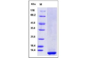 Image no. 1 for Colipase, Pancreatic (CLPS) (AA 1-112) (Active) protein (His tag) (ABIN2005816)
