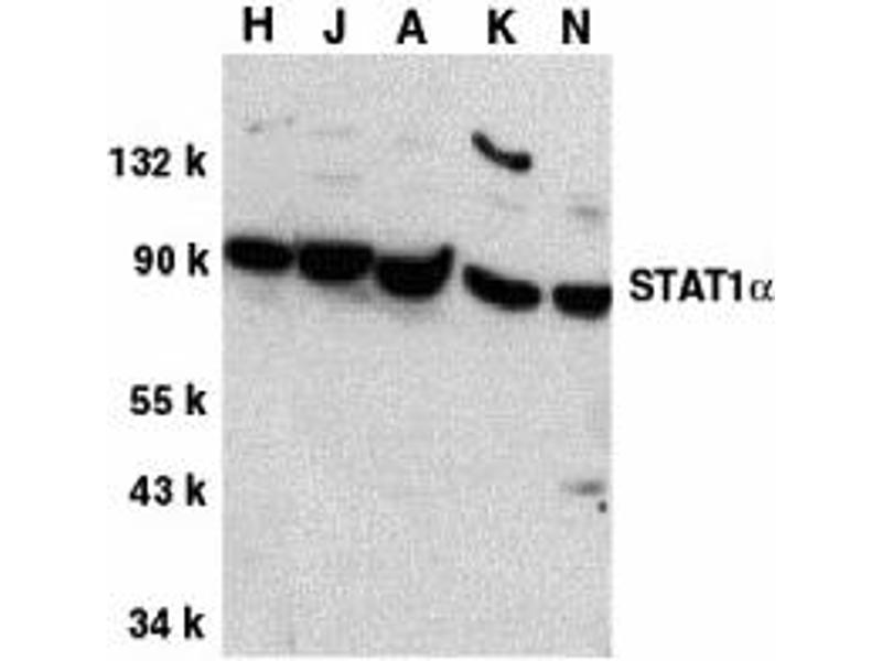 Western Blotting (WB) image for anti-STAT1 antibody (Signal Transducer and Activator of Transcription 1, 91kDa) (C-Term) (ABIN2505980)
