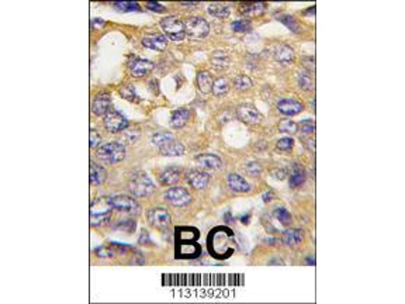 Immunohistochemistry (IHC) image for anti-Autophagy/beclin-1 Regulator 1 (AMBRA1) (AA 27-55), (N-Term) antibody (ABIN388572)