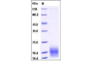 Image no. 1 for Chemokine (C Motif) Ligand 1 (XCL1) (AA 1-114) protein (His tag) (ABIN2003198)