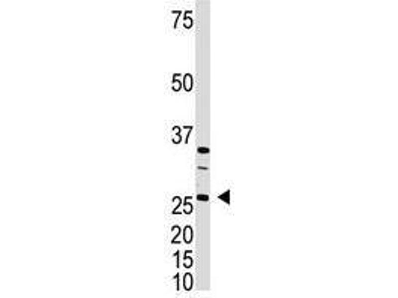 Image no. 1 for anti-DKK4 antibody (Dickkopf Homolog 4 (Xenopus Laevis)) (C-Term) (ABIN357074)