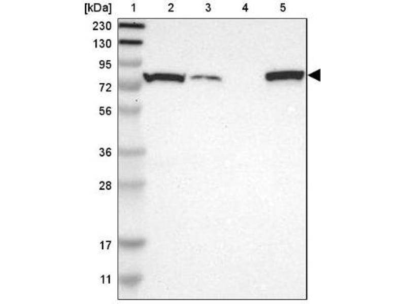 Western Blotting (WB) image for anti-P450 (Cytochrome) Oxidoreductase (POR) antibody (ABIN4346845)
