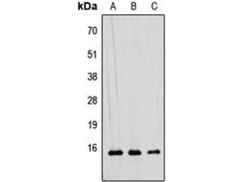 Western Blotting (WB) image for anti-RAD52 Motif 1 (RDM1) (Center) antibody (ABIN2706921)