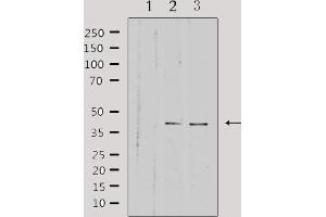 Image no. 3 for anti-Hydroxy-delta-5-Steroid Dehydrogenase, 3 beta- and Steroid delta-Isomerase 7 (HSD3B7) antibody (ABIN6258713)
