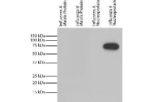 Image no. 1 for anti-Influenza Nucleoprotein antibody (Influenza B Virus) (HRP) (ABIN5707182)