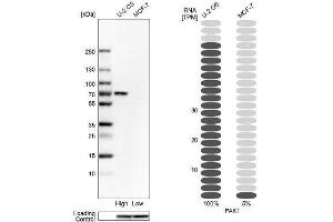 Western Blotting (WB) image for anti-P21-Activated Kinase 1 (PAK1) antibody (ABIN4343458)