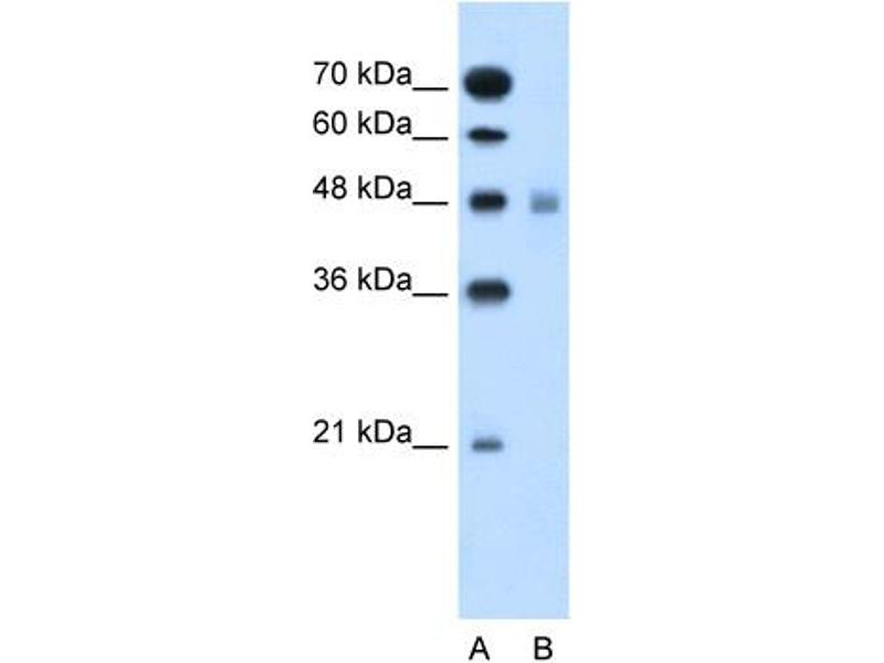 Western Blotting (WB) image for anti-Solute Carrier Family 17 (Anion/Sugar Transporter), Member 4 (SLC17A4) (Middle Region) antibody (ABIN2781622)