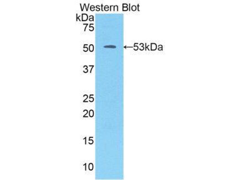 Western Blotting (WB) image for anti-Kallikrein 7 (KLK7) (AA 23-253) antibody (ABIN1859557)