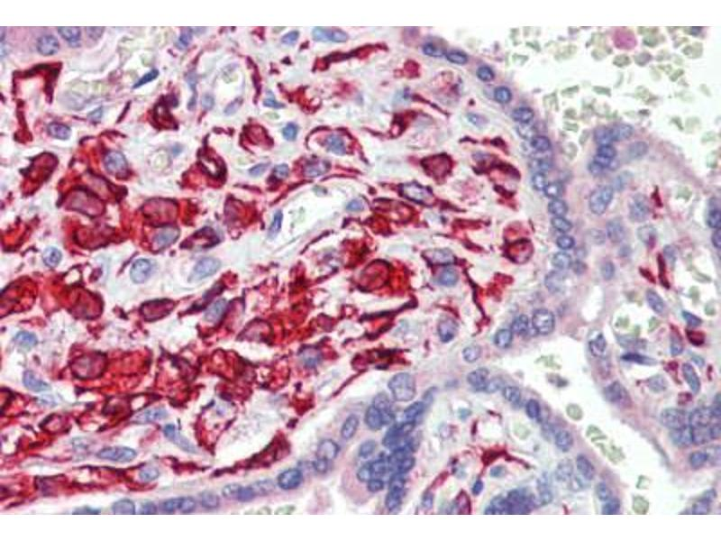 Immunohistochemistry (Paraffin-embedded Sections) (IHC (p)) image for anti-TEA Domain Family Member 1 (SV40 Transcriptional Enhancer Factor) (TEAD1) (C-Term) antibody (ABIN462220)