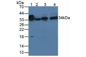 Image no. 3 for anti-alpha-2-Glycoprotein 1, Zinc-Binding (AZGP1) (AA 18-296) antibody (ABIN5662377)