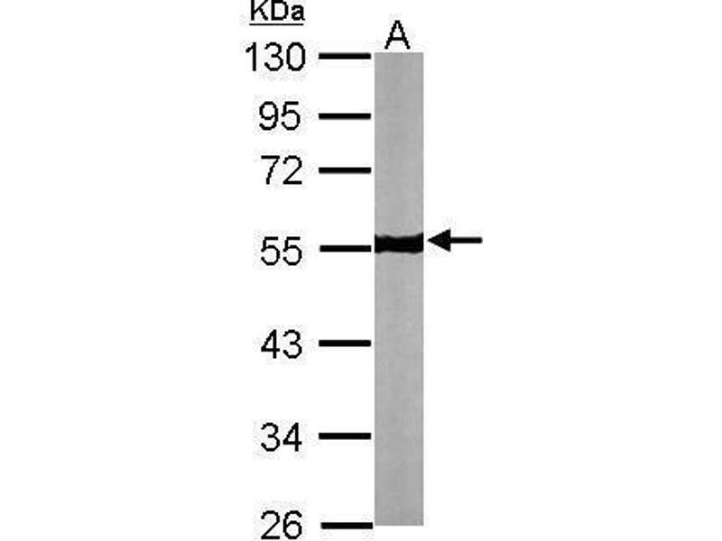 Western Blotting (WB) image for anti-Tubulin, beta (TUBB) (Center) antibody (ABIN2854998)