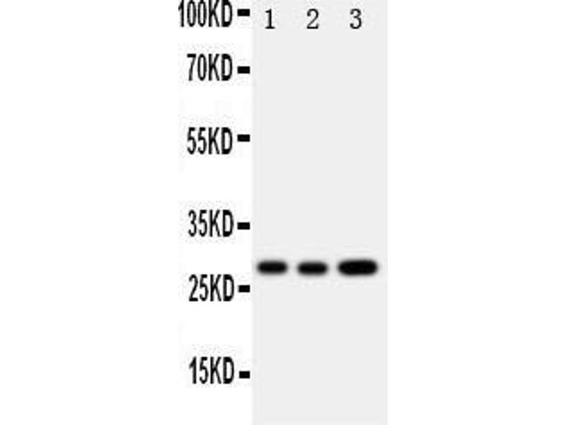 Western Blotting (WB) image for anti-Oncostatin M (OSM) (AA 181-198), (Middle Region) antibody (ABIN3043117)