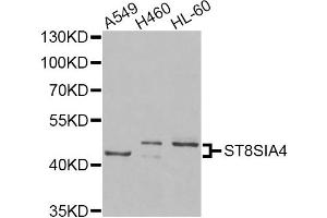 Image no. 1 for anti-ST8 alpha-N-Acetyl-Neuraminide alpha-2,8-Sialyltransferase 4 (ST8SIA4) antibody (ABIN6570683)